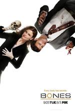 Trailer Bones